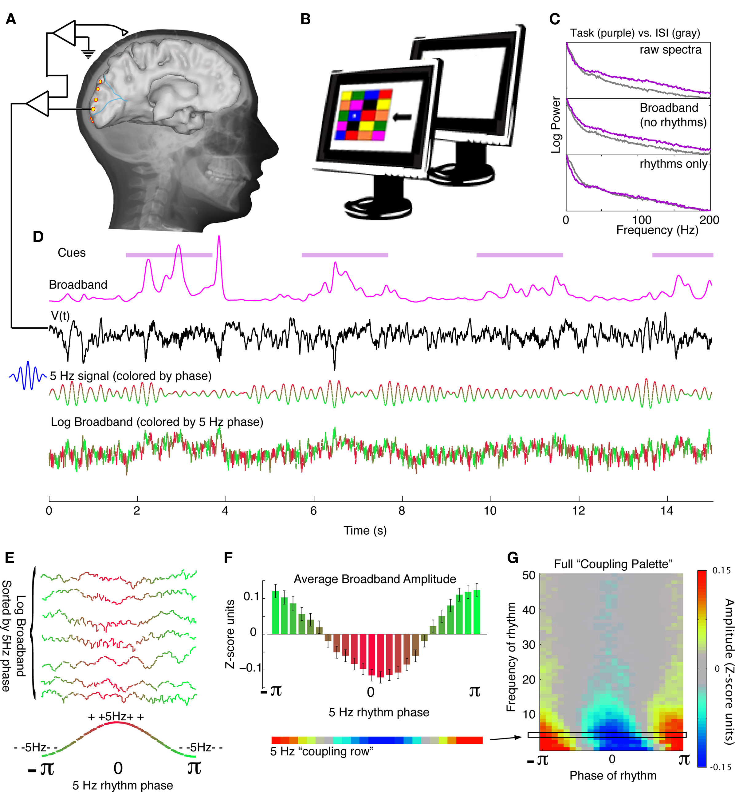 ANALYSIS OF EPILEPTIC SEIZURE DETECTION METHODS BASED ON PARAMETER ESTIMATION, POWER SPECTRUM DENSITY AND MORLET WAVELET TRANSFORM